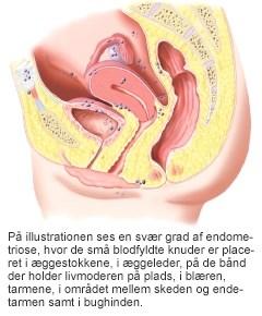 Smerter i livmoderen